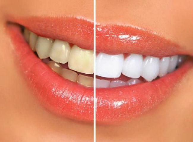 Perdizes Odontologia Integrada Clareamento Dental